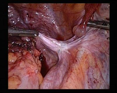 Endometriose pelvienne sur trajet uretere droit
